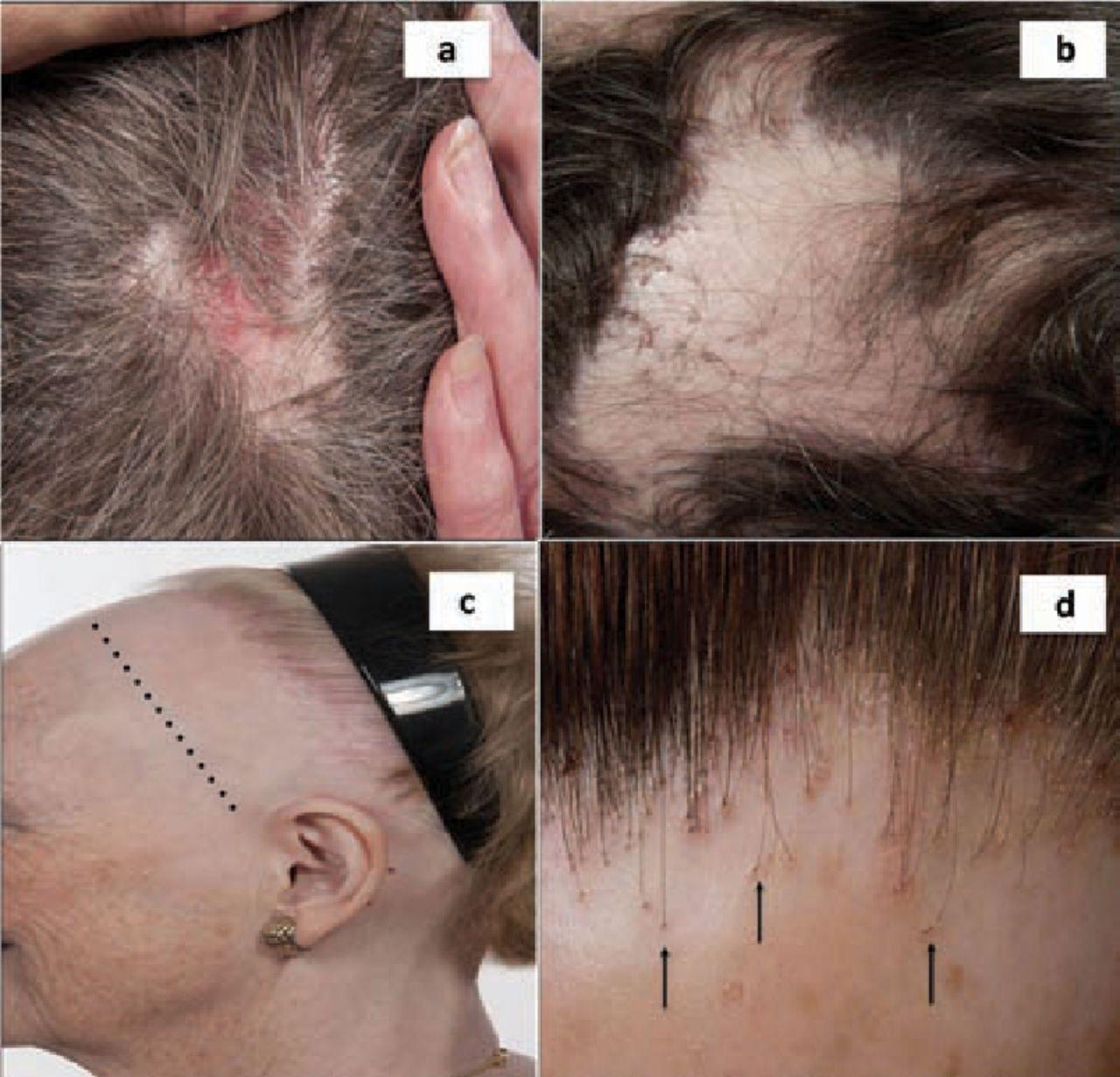 Alopecia In General Medicine Rcp Journals