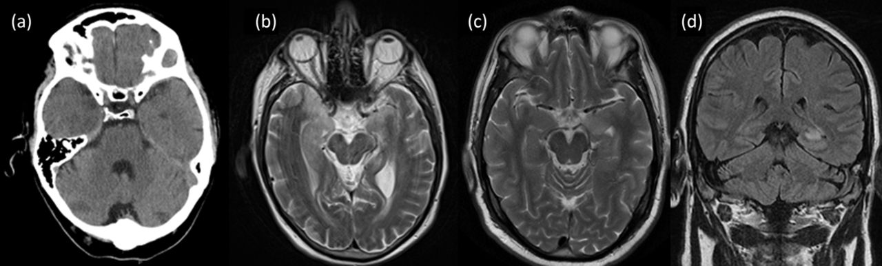 Acute Encephalitis Diagnosis And Management Rcp Journals
